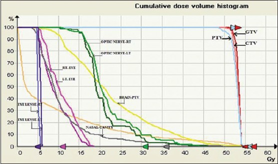 Figure 4: Dose volume histogram of plan for the case of glioblastoma multiforme where planning target volume is very close to optic chiasma and optic nerves